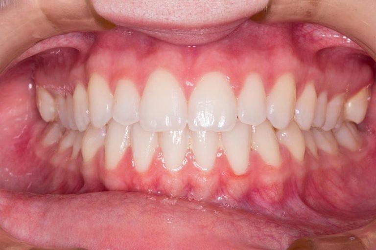 Czy znacie wszystkie techniki leczenia zębów?